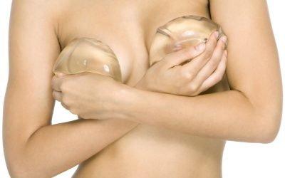 Breve storia delle protesi mammarie e della mastoplastica additiva.