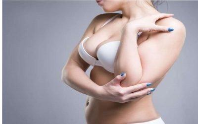 10 domande sulla mastoplastica additiva e sulle protesi mammarie
